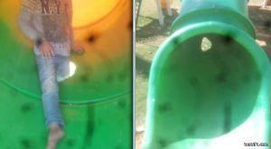 كسور في العاب حدائق طريف تخلف اصابات للأطفال